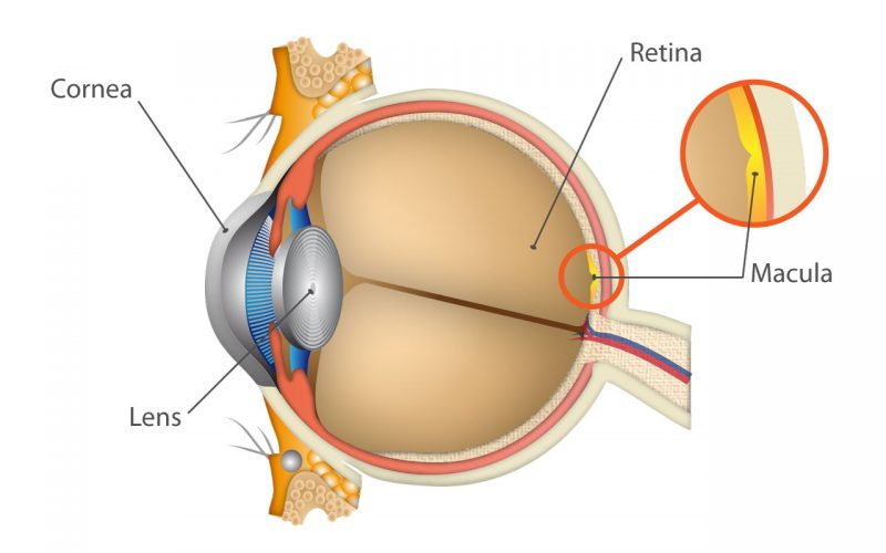 Age - Related Macular Degeneration - Advanced Eye Care